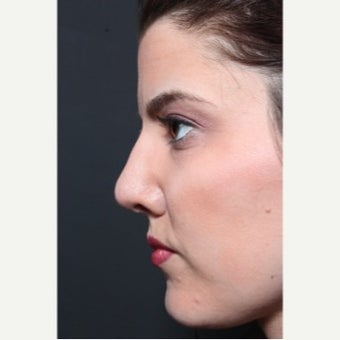 25-34 year old woman treated with Revision Rhinoplasty after 1851731