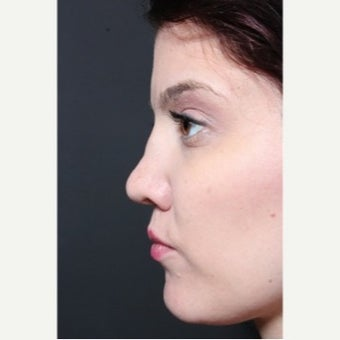 25-34 year old woman treated with Revision Rhinoplasty before 1851731