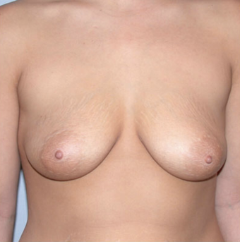 Breast Implants before 1071045