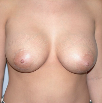 Breast Implants after 1071045