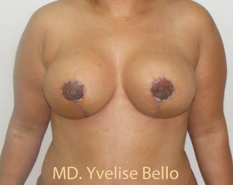 35-44 year old woman treated with Breast Reduction after 1698114