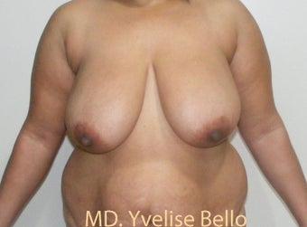 35-44 year old woman treated with Breast Reduction before 1698114