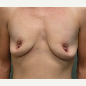 35-44 year old woman treated with Breast Augmentation before 2730301
