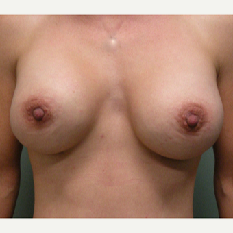 35-44 year old woman treated with Breast Augmentation after 2730301