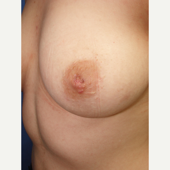 25-34 year old woman treated with Nipple Surgery before 3159962