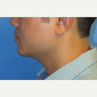 33 year old man treated with Chin Implant after 3384757
