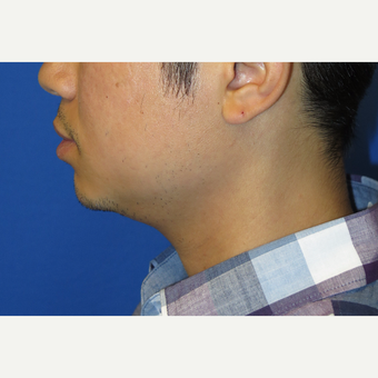 33 year old man treated with Chin Implant before 3384757