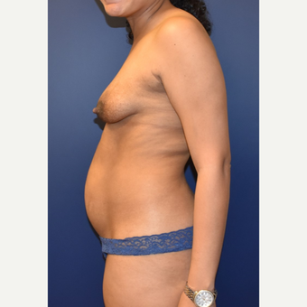35-44 year old woman treated with Breast Lift with Implants before 3348720