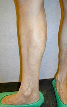 Endovenous Laser Ablation, EVLT, Before and After