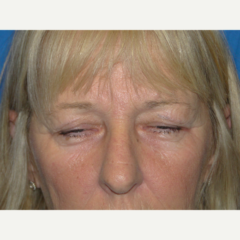 Upper Eyelid Surgery before 3738806