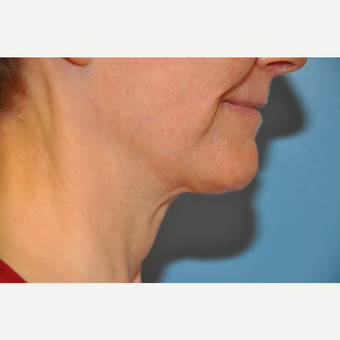 65-74 year old woman treated with ThermiTight Neck before 3075725