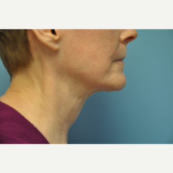 65-74 year old woman treated with ThermiTight Neck after 3075725