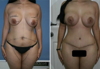 25-34 year old woman treated with Mommy Makeover before 3170105