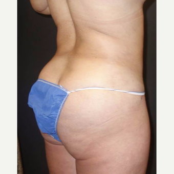 35-44 year old woman treated with Brazilian Butt Lift after 3489173