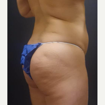 35-44 year old woman treated with Brazilian Butt Lift before 3489173