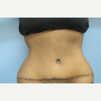 25-34 year old woman treated with Tummy Tuck after 2883216