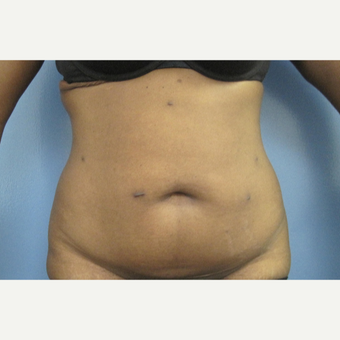 25-34 year old woman treated with Tummy Tuck before 2883216
