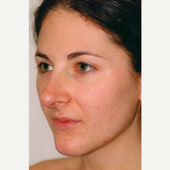 25-34 year old woman treated with Rhinoplasty before 3406238
