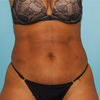 35-44 year old woman treated with Slim Lipo after 2019102