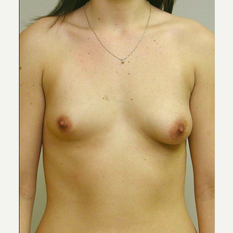 Breast Implants before 3241510