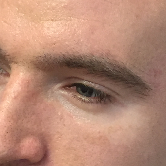 25-34 year old man treated with Eyebrow Transplant after 3411344