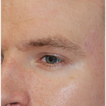 25-34 year old man treated with Eyebrow Transplant before 3411344
