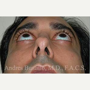 31 year old man treated with Revision Rhinoplasty before 3460742