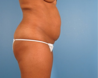 35-44 year old woman treated with Tummy Tuck before 1939285