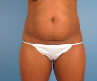35-44 year old woman treated with Tummy Tuck 1939285