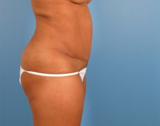 35-44 year old woman treated with Tummy Tuck after 1939285