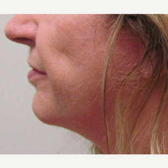 Chin Implant for this 58 Year Old Woman after 3043243