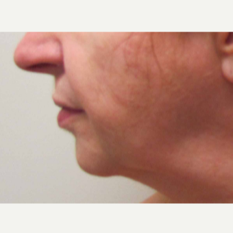 Chin Implant for this 58 Year Old Woman before 3043243