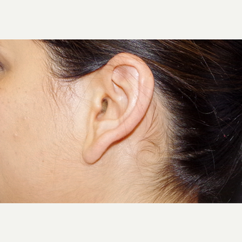 35-44 year old woman treated with Ear Lobe Surgery before 3055234