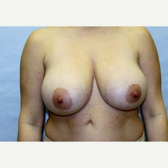 37 year old woman treated with Breast Reduction before 1671669