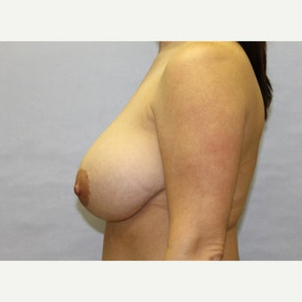 37 year old woman treated with Breast Reduction 1671669