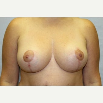 37 year old woman treated with Breast Reduction after 1671669
