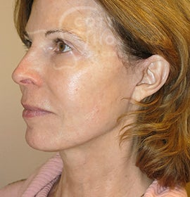 61 Year Old Female with a MACS Facelift (Mini Facelift)