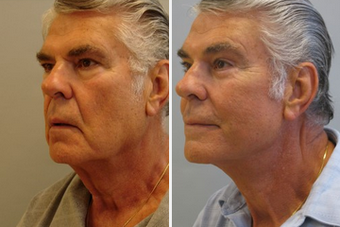 Male Facial Contouring before 1359053
