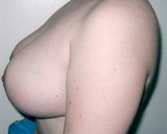 Breast Reduction after 1219726