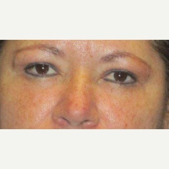 45-54 year old woman treated with Fat Transfer and lower eyelid laser with upper blepharoplasty after 1539453