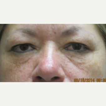 45-54 year old woman treated with Fat Transfer and lower eyelid laser with upper blepharoplasty before 1539453