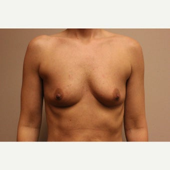35-44 year old woman treated with Breast Augmentation before 1846391