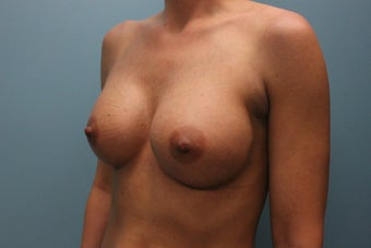 35-44 year old woman treated with Breast Augmentation 1846391
