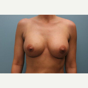 35-44 year old woman treated with Breast Augmentation after 1846391