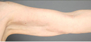 Smart Lipo: Upper Arm Area after 989027