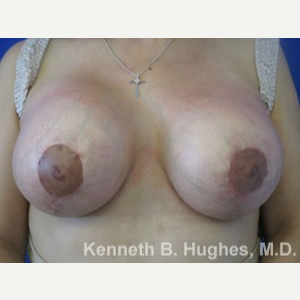 Breast Lift after 3055101