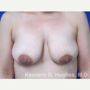 Breast Lift before 3055101