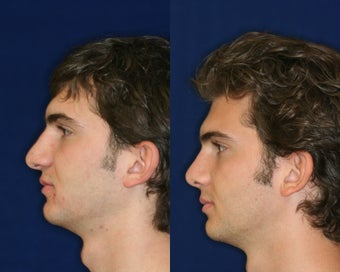Rhinoplasty before 229779