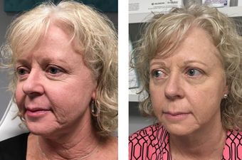55-64 year old woman treated with Sculptra
