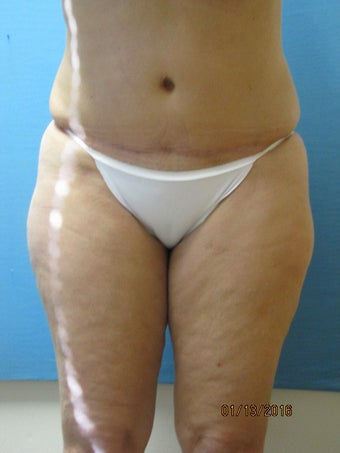 Tummy Tuck after 629782